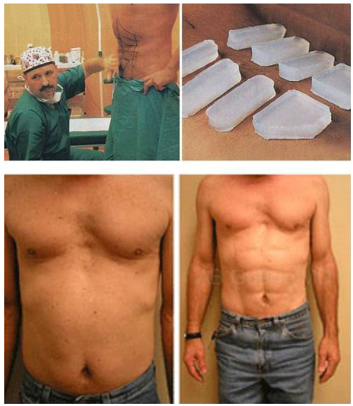 Ab-six-pack-implant-surgery
