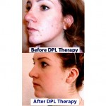 Before and After Acne Treatment using DPL Light Therapy