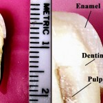Labeled insides of a tooth
