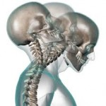 Treatments for Whiplash Injuries